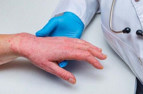 건선과 관상 동맥 질환의 관련성