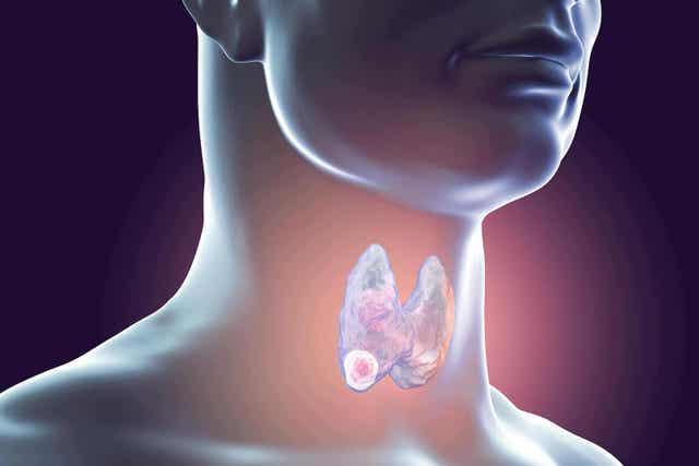 갑상샘생검은 무엇으로 구성되어 있을까?