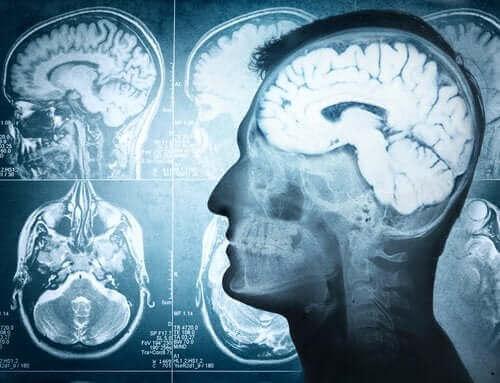 뇌의 놀라운 기능