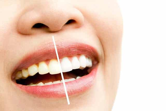 치아 변색의 원인