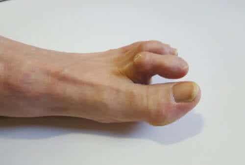 망치발가락의 증상, 원인, 치료