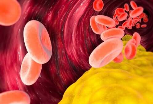 VLDL 콜레스테롤은 몸에 해로울까?