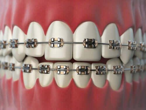 치아 교정 중 유의 사항 8가지