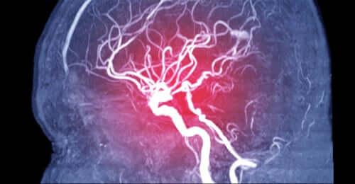 뇌색전증의 유형, 원인, 증상